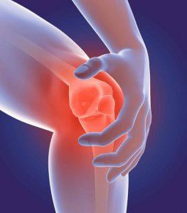 Arthritis - Flexsion Ortho